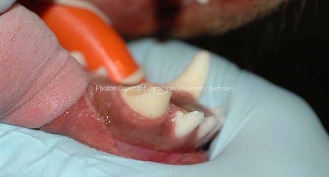 1-complicated-crown-fracture-of-tooth-404-with-pulp-exposure